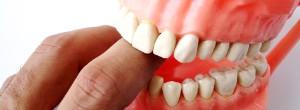 Protetyka stomatologiczna: